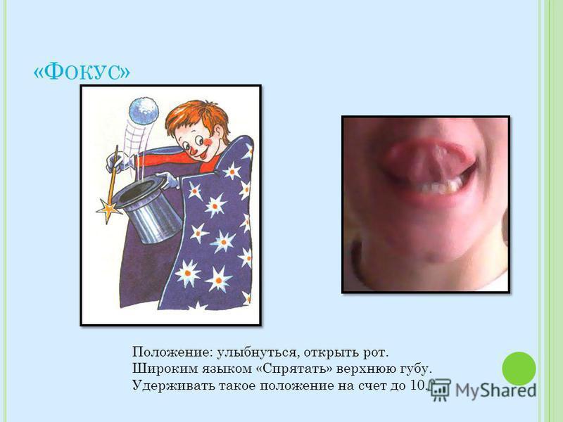 «Ф ОКУС » Положение: улыбнуться, открыть рот. Широким языком «Спрятать» верхнюю губу. Удерживать такое положение на счет до 10.