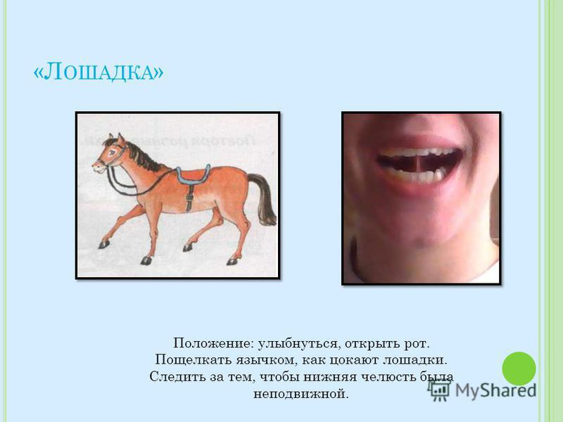 «Л ОШАДКА » Положение: улыбнуться, открыть рот. Пощелкать язычком, как цокают лошадки. Следить за тем, чтобы нижняя челюсть была неподвижной.