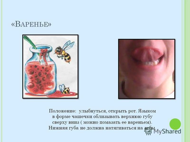«В АРЕНЬЕ » Положение: улыбнуться, открыть рот. Языком в форме чашечки облизывать верхнюю губу сверху вниз ( можно помазать ее вареньем). Нижняя губа не должна натягиваться на зубы.