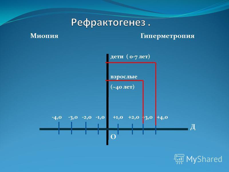 Миопия Гиперметропия дети ( 0-7 лет) взрослые (~40 лет) -4,0 -3,0 -2,0 -1,0 +1,0 +2,0 +3,0 +4,0 Д О