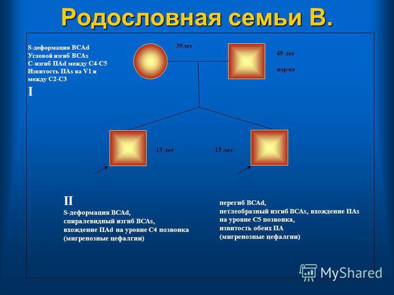 Родословная семьи В. 49 лет норма II S-деформация ВСАd, спиралевидный изгиб ВСАs, вхождение ПАd на уровне С4 позвонка (мигренозные цефалгии) S-деформация ВСАd Угловой изгиб ВСАs С-изгиб ПАd между С4-С5 Извитость ПАs на V1 и между С2-С3 I перегиб ВСАd