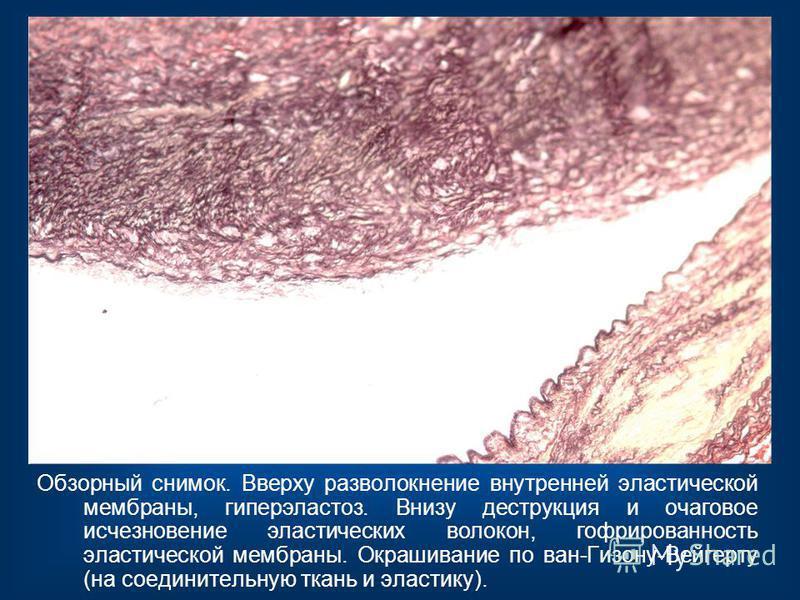 Обзорный снимок. Вверху разволокнение внутренней эластической мембраны, гиперэластоз. Внизу деструкция и очаговое исчезновение эластических волокон, гофрированность эластической мембраны. Окрашивание по ван-Гизону-Вейгерту (на соединительную ткань и
