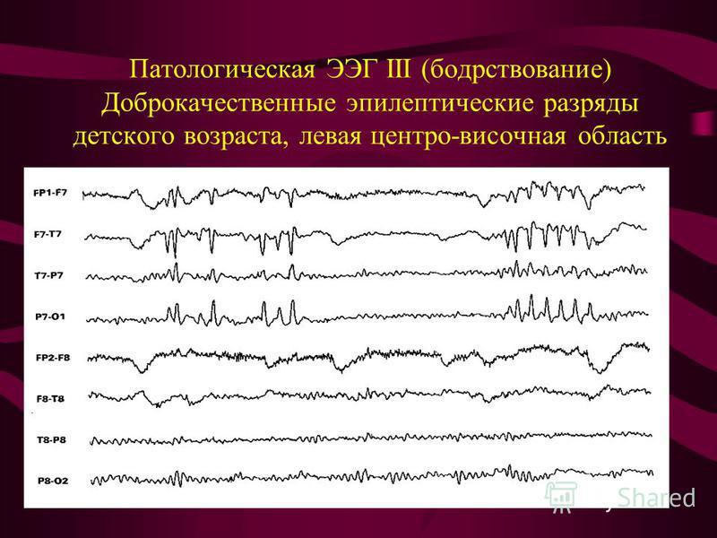 Патологическая ЭЭГ III (бодрствование) Доброкачественные эпилептические разряды детского возраста, левая центра-височная область
