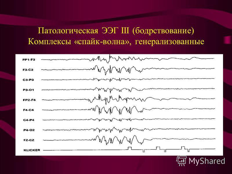 Патологическая ЭЭГ III (бодрствование) Комплексы «спайк-волна», генерализованные