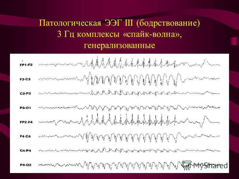 Патологическая ЭЭГ III (бодрствование) 3 Гц комплексы «спайк-волна», генерализованные