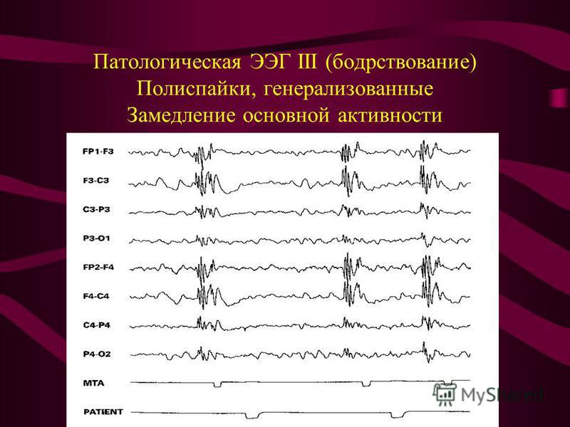 Патологическая ЭЭГ III (бодрствование) Полиспайки, генерализованные Замедление основной активности
