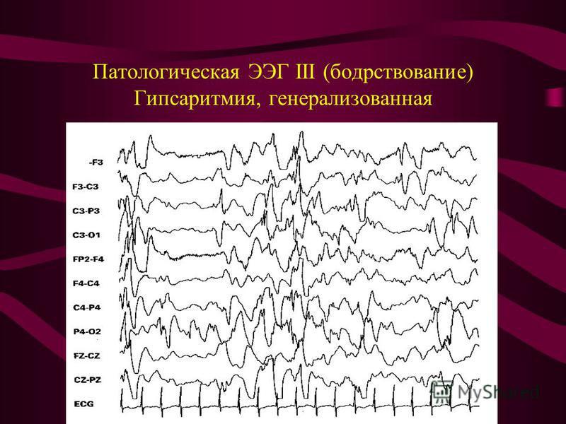 Патологическая ЭЭГ III (бодрствование) Гипсаритмия, генерализованная