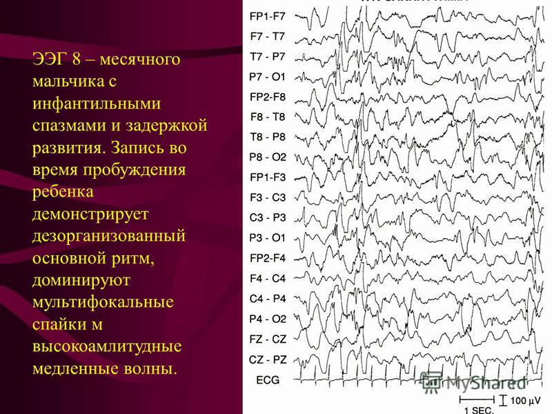 ЭЭГ 8 – месячного мальчика с инфантильными спазмами и задержкой развития. Запись во время пробуждения ребенка демонстрирует дезорганизованный основной ритм, доминируют мультифокальные спайки м высокоамплитудные медленные волны.