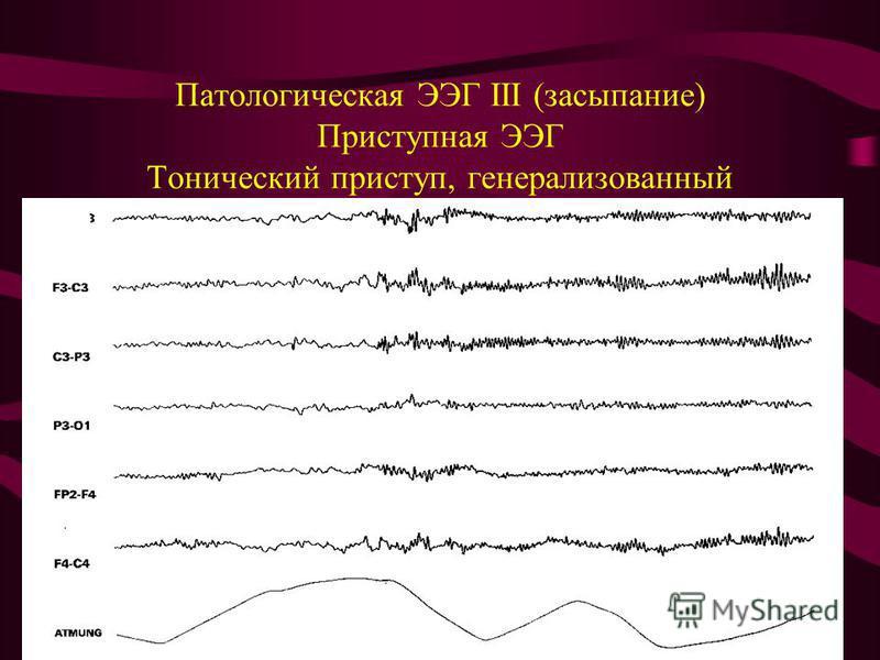 Патологическая ЭЭГ III (засыпание) Приступная ЭЭГ Тонический приступ, генерализованный
