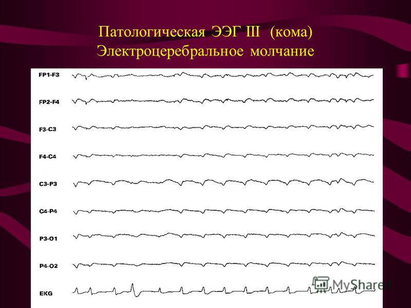 Патологическая ЭЭГ III (кома) Электроцеребральное молчание