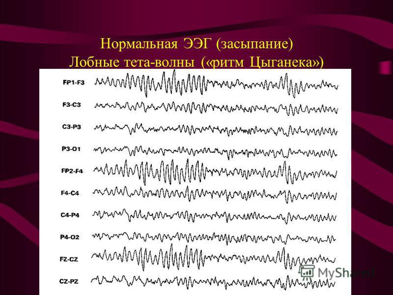 Нормальная ЭЭГ (засыпание) Лобные тета-волны («ритм Цыганека»)