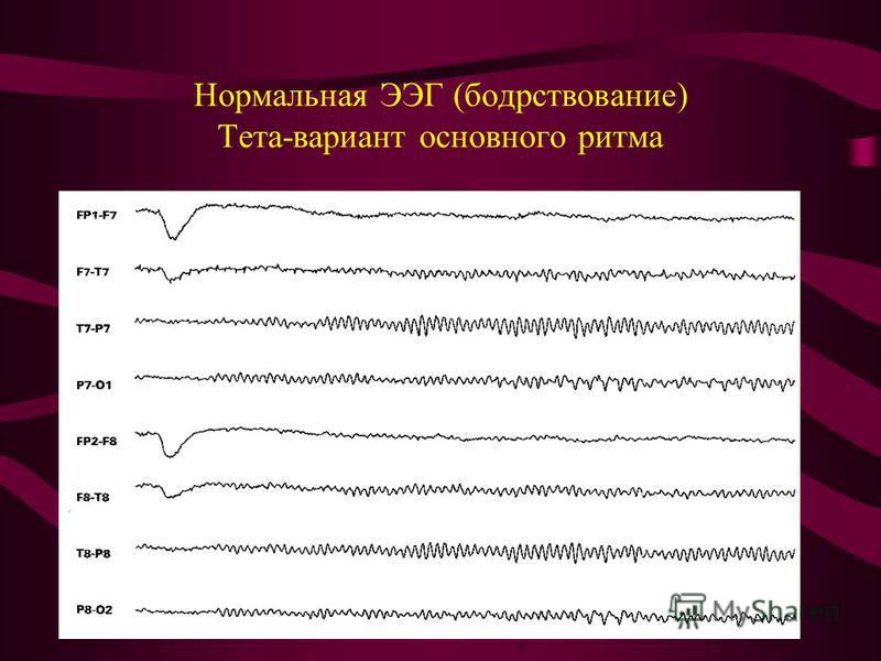 Нормальная ЭЭГ (бодрствование) Тета-вариант основного ритма