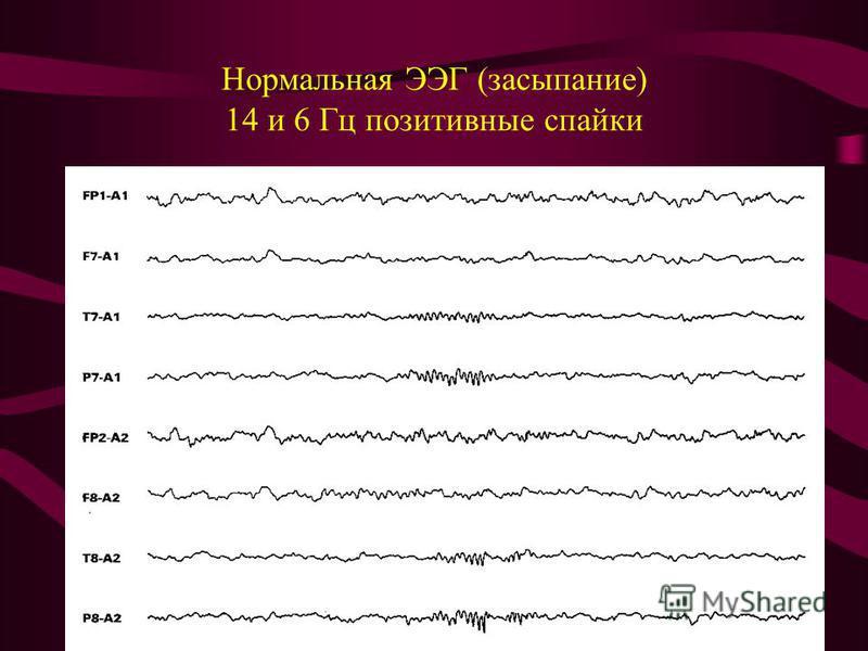 Нормальная ЭЭГ (засыпание) 14 и 6 Гц позитивные спайки