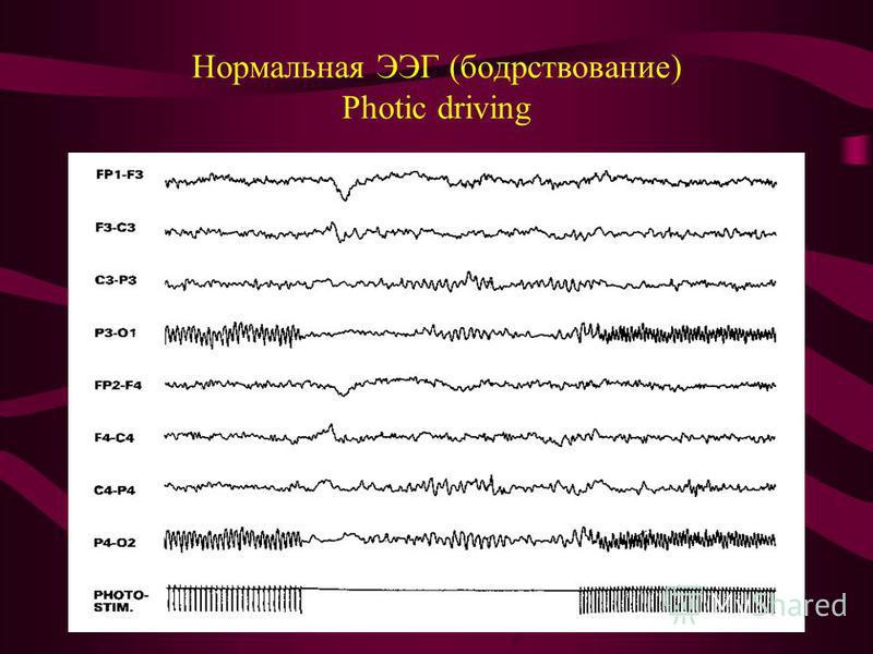 Нормальная ЭЭГ (бодрствование) Photic driving