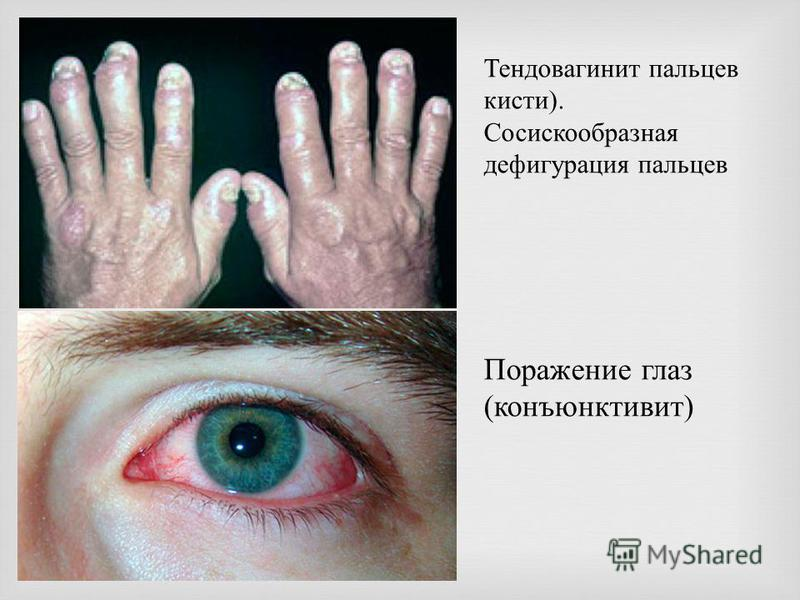 Тендовагинит пальцев кисти). Сосискообразная дефигурация пальцев Поражение глаз (конъюнктивит)
