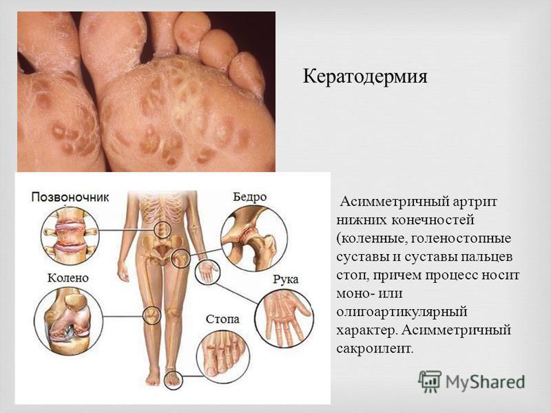 Кератодермия Асимметричный артрит нижних конечностей ( коленные, голеностопные суставы и суставы пальцев стоп, причем процесс носит моно - или олигоартикулярный характер. Асимметричный сакроилеит.