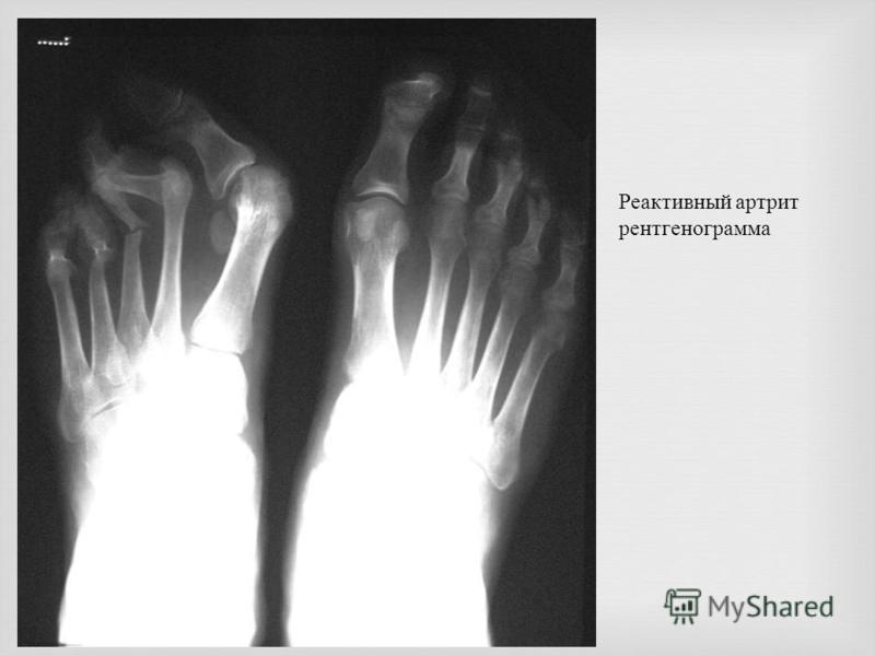 Реактивный артрит рентгенограмма
