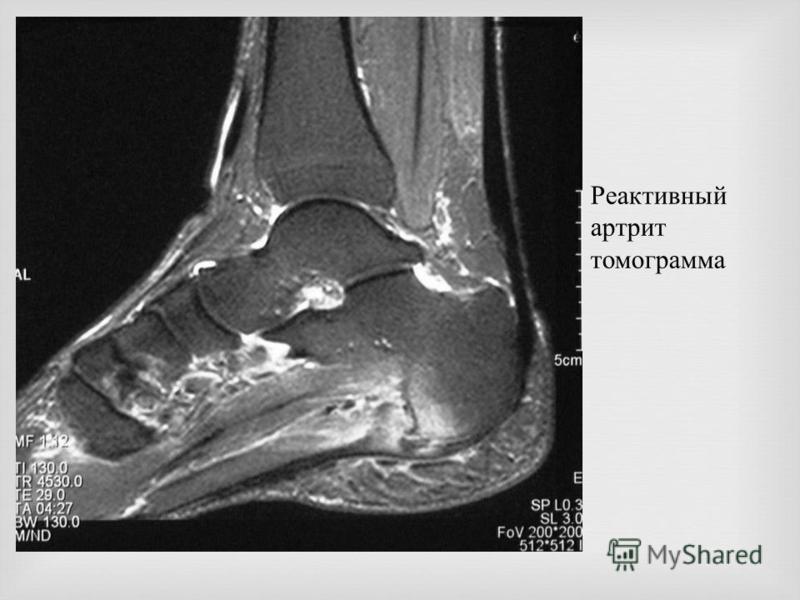 Реактивный артрит томограмма