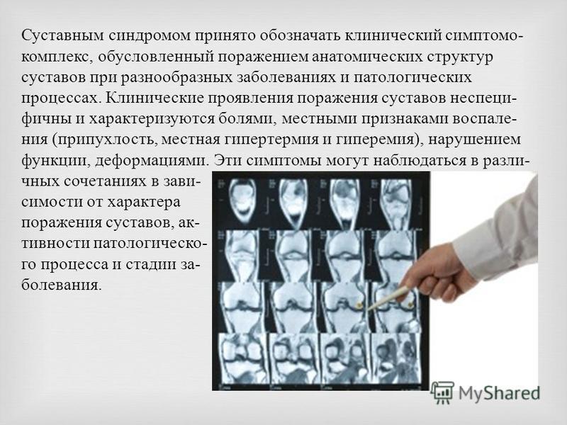 Суставным синдромом принято обозначать клинический симптомо - комплекс, обусловленный поражением анатомических структур суставов при разнообразных заболеваниях и патологических процессах. Клинические проявления поражения суставов неспеци - фичны и ха