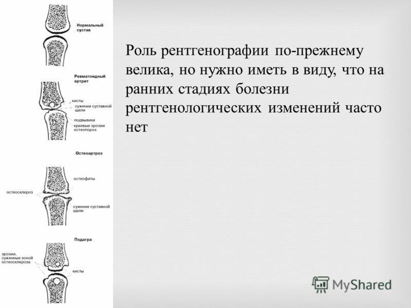 Роль рентгенографии по - прежнему велика, но нужно иметь в виду, что на ранних стадиях болезни рентгенологических изменений часто нет