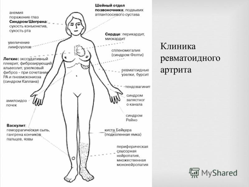 Клиника ревматоидного артрита