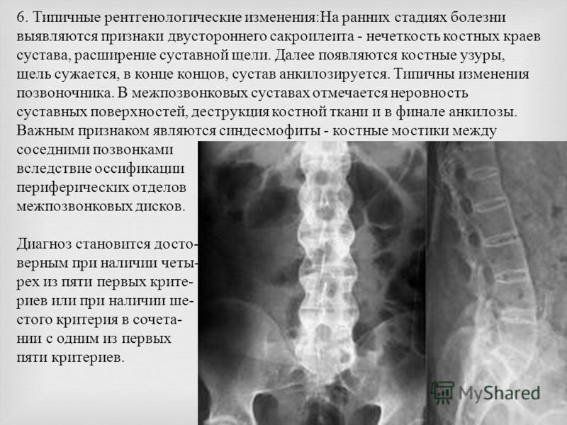 6. Типичные рентгенологические изменения : На ранних стадиях болезни выявляются признаки двустороннего сакроилеита - нечеткость костных краев сустава, расширение суставной щели. Далее появляются костные узуры, щель сужается, в конце концов, сустав ан