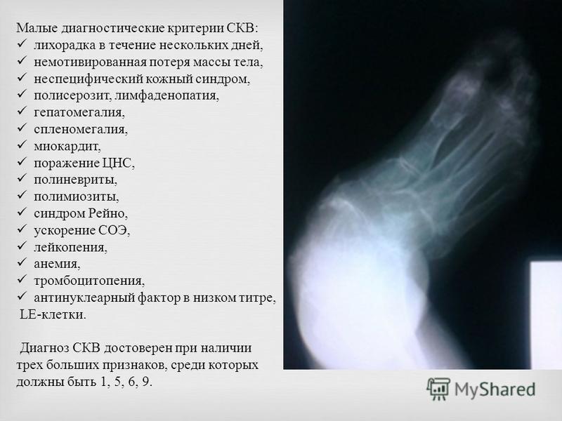 Малые диагностическийе критерии СКВ : лихорадка в течение нескольких дней, немотивированная потеря массы тела, неспецифический кожный синдром, полисерозит, лимфаденопатия, гепатомегалия, спленомегалия, миокардит, поражение ЦНС, полиневриты, полимиози