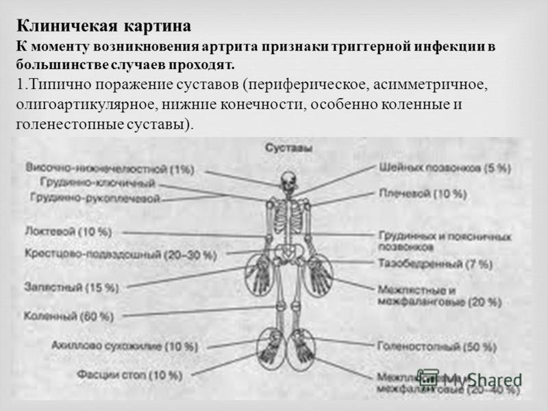 Клиничекая картина К моменту возникновения артрита признаки триггерной инфекции в большинстве случаев проходят. 1. Типично поражение суставов (периферическое, асимметричное, олигоартикулярное, нижние конечности, особенно коленные и голеностопные суст