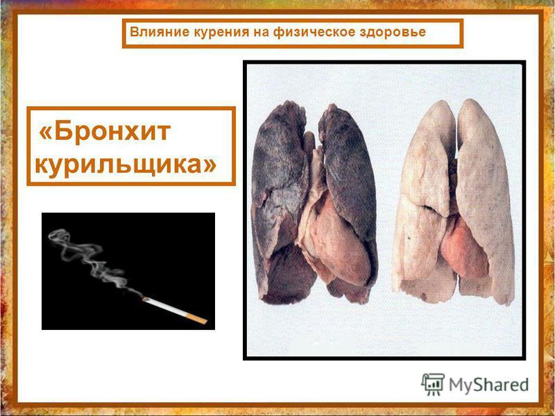 Влияние курения на физическое здоровье «Бронхит курильщика»