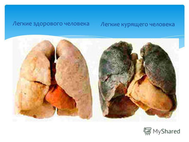 Легкие здорового человека Легкие курящего человека