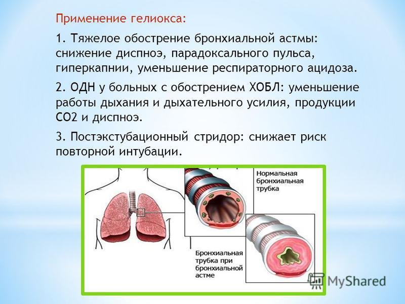 Применение гелиокса: 1. Тяжелое обострение бронхиальной астмы: снижение диспноэ, парадоксального пульса, гиперкапнии, уменьшение респираторного ацидоза. 2. ОДН у больных с обострением ХОБЛ: уменьшение работы дыхания и дыхательного усилия, продукции С