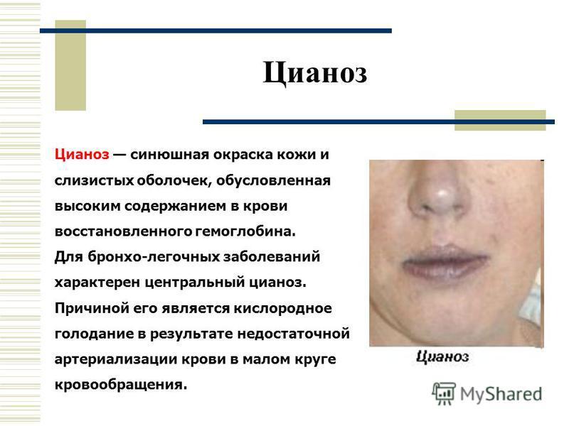 Цианоз Цианоз синюшная окраска кожи и слизистых оболочек, обусловленная высоким содержанием в крови восстановленного гемоглобина. Для бронхо-легочных заболеваний характерен центральный цианоз. Причиной его является кислородное голодание в результате