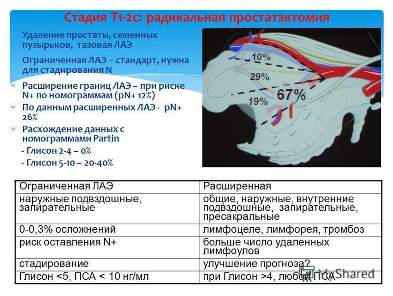 Стадия Т1-2 с: радикальная простатэктомия Удаление простаты, семенных пузырьков, тазовая ЛАЭ Ограниченная ЛАЭ – стандарт, нужна для стажирования N Расширение границ ЛАЭ – при риске N+ по номограммам (pN+ 12%) По данным расширенных ЛАЭ - pN+ 26% Расхо