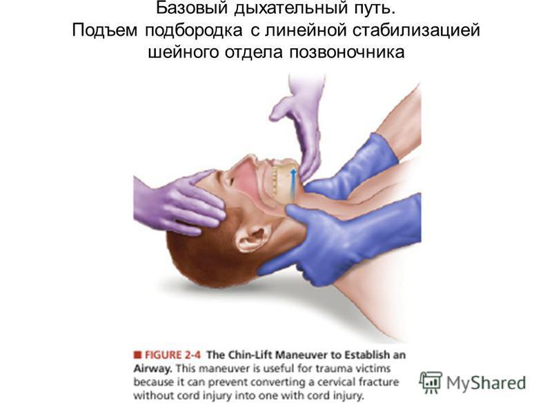 Базовый дыхательный путь. Подъем подбородка с линейной стабилизацией шейного отдела позвоночника