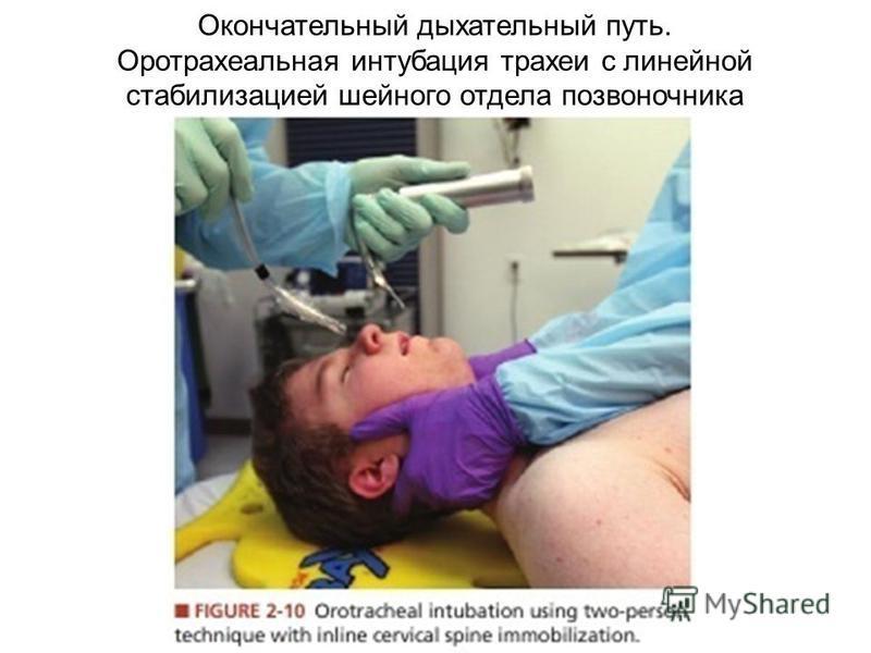 Окончательный дыхательный путь. Оротрахеальная интубация трахеи с линейной стабилизацией шейного отдела позвоночника