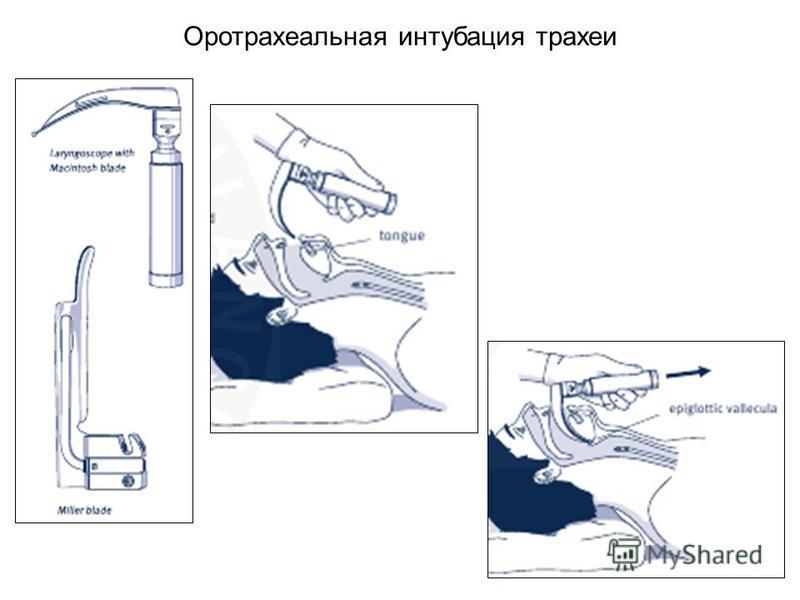 Оротрахеальная интубация трахеи