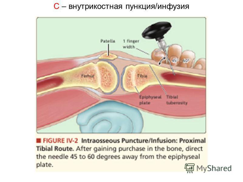 C – внутрикостная пункция/инфузия