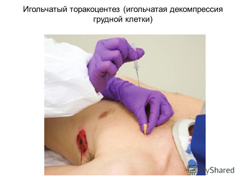 Игольчатый торакоцентез (игольчатая декомпрессия грудной клетки)