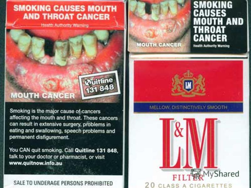 Рак губы Рак губы