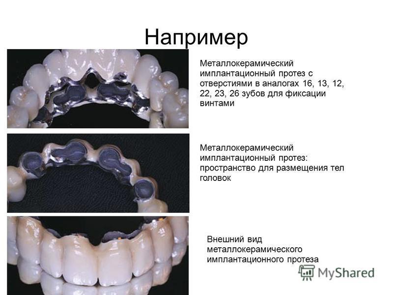 Например Металлокерамический имплантационный протез с отверстиями в аналогах 16, 13, 12, 22, 23, 26 зубов для фиксации винтами Металлокерамический имплантационный протез: пространство для размещения тел головок Внешний вид металлокерамического имплан