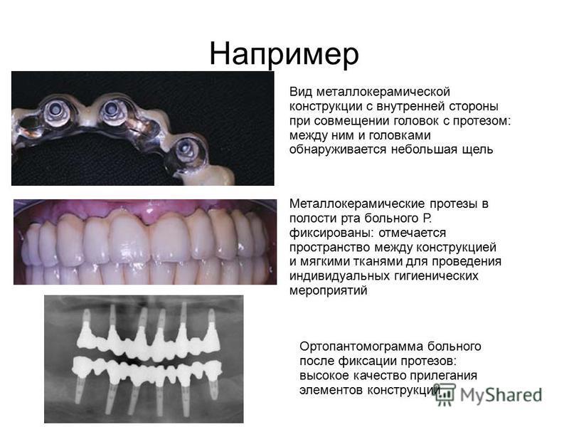 Например Вид металлокерамической конструкции с внутренней стороны при совмещении головок с протезом: между ним и головками обнаруживается небольшая щель Металлокерамические протезы в полости рта больного Р. фиксированы: отмечается пространство между
