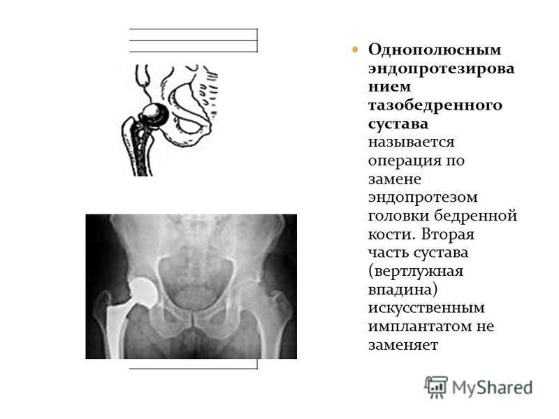 Однополюсным эндопротезированием тазобедренного сустава называется операция по замене эндопротезом головки бедренной кости. Вторая часть сустава (вертлужная впадина) искусственным имплантатом не заменяет