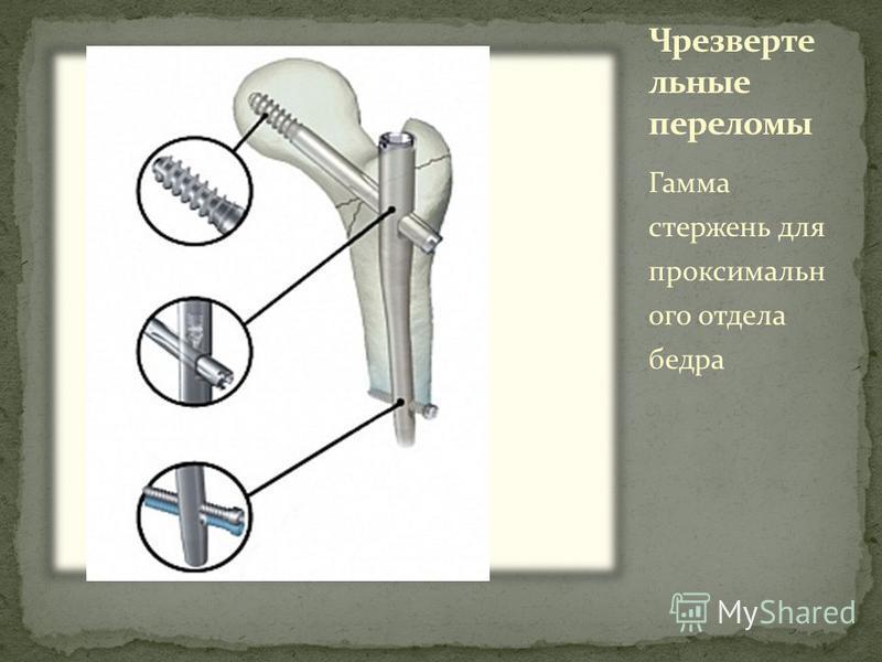 Гамма стержень для проксимального отдела бедра