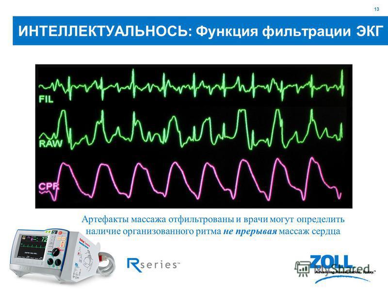 13 Артефакты массажа отфильтрованы и врачи могут определить наличие организованного ритма не прерывая массаж сердца ИНТЕЛЛЕКТУАЛЬНОСЬ: Функция фильтрации ЭКГ
