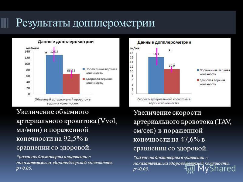 Результаты допплерометрии Увеличение скорости артериального кровотока (TAV, см/сек) в пораженной конечности на 47,6% в сравнении со здоровой. *различия достоверны в сравнении с показателями на здоровой верхней конечности, p