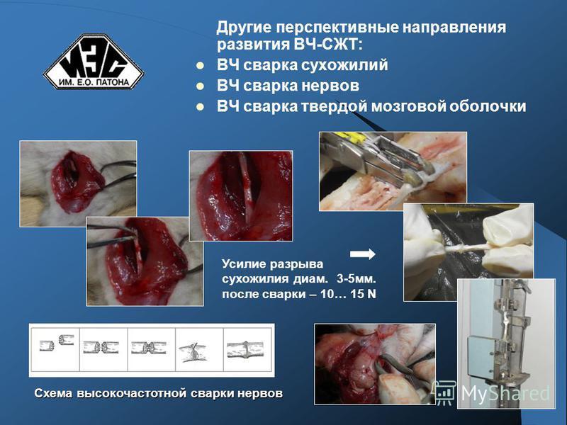 Другие перспективные направления развития ВЧ-СЖТ: ВЧ сварка сухожилий ВЧ сварка нервов ВЧ сварка твердой мозговой оболочки Схема высокочастотной сварки нервов Усилие разрыва сухожилия диам. 3-5 мм. после сварки – 10… 15 N