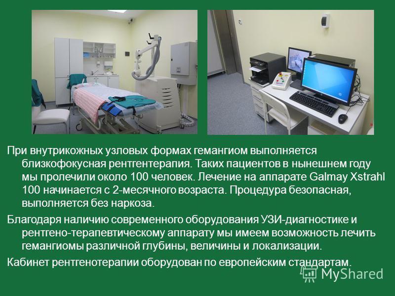 При внутрикожных узловых формах гемангиом выполняется близкофокусная рентгенотерапия. Таких пациентов в нынешнем году мы пролечили около 100 человек. Лечение на аппарате Galmay Xstrahl 100 начинается с 2-месячного возраста. Процедура безопасная, выпо