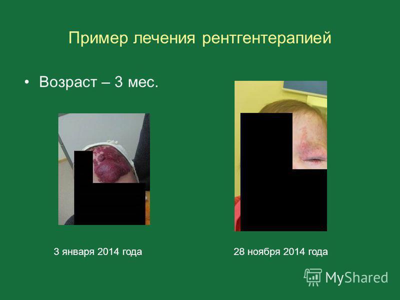 Пример лечения рентгенотерапией Возраст – 3 мес. 3 января 2014 года 28 ноября 2014 года