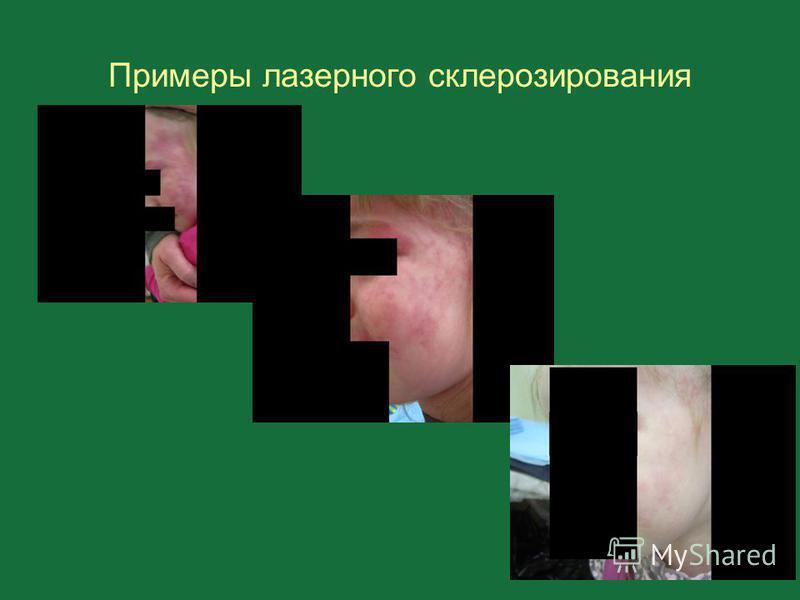 Примеры лазерного склерозирования