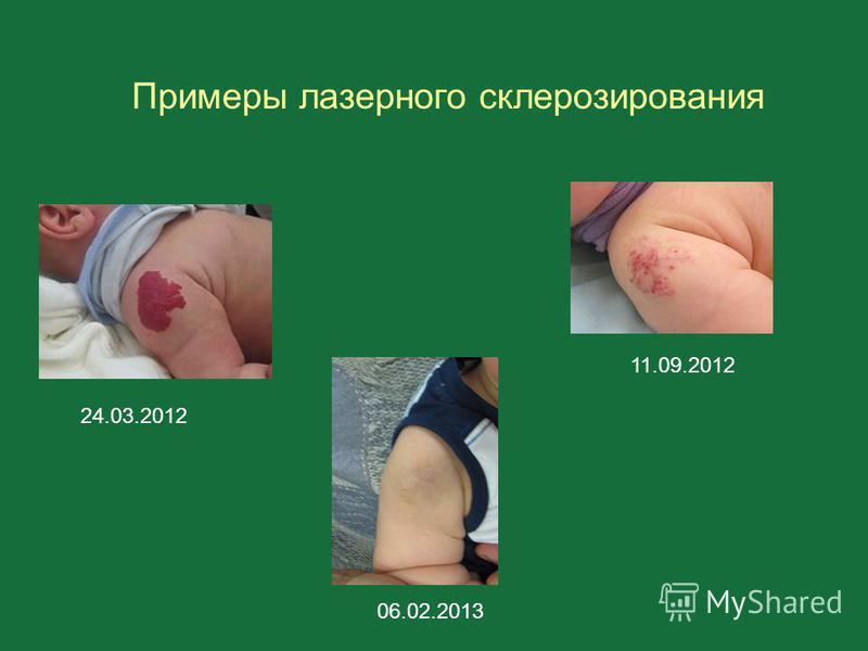 Примеры лазерного склерозирования 24.03.2012 11.09.2012 06.02.2013